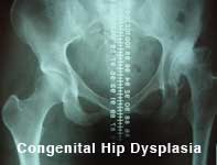 Agree, Hip displacement in teens what